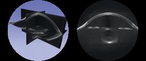 3D Volumetric Images